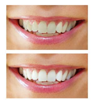 Отбеливание зубов в Чебоксарах