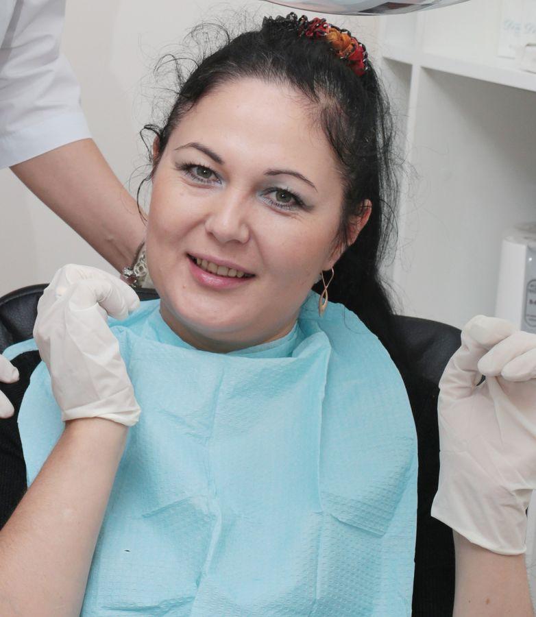 Вы просматриваете изображения у материала: Проверено на себе: экспресс отбеливание зубов